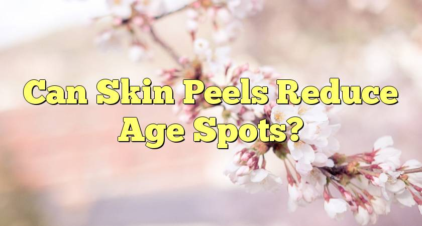 Can Skin Peels Reduce Age Spots?