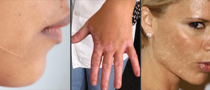 Hypopigmentation examples
