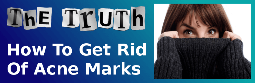 The Truth How To Get Rid Of Acne Marks