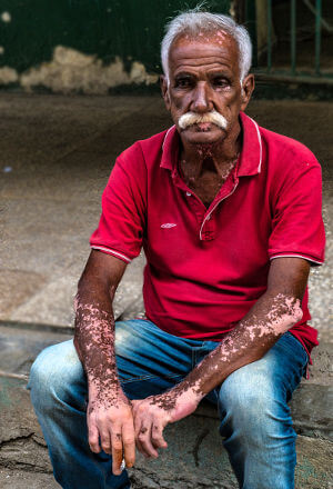 What vitiligo looks like. Image credit: Robert Levy